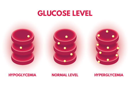 Hyperglycemia, Hypjglycemia Human glucose levels isometric. Vector illustration.