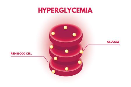 Hyperglycemia, Human glucose levels isometric. Vector illustration. Illustration