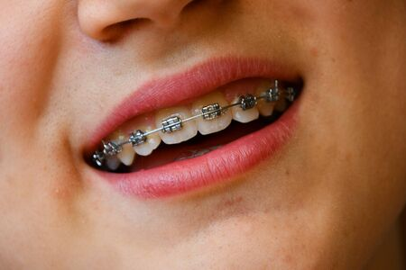 Closeup of a face of Caucasian boy with metal device for tooth 스톡 콘텐츠
