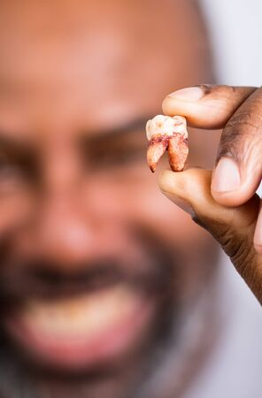 African American Man showing extracted tooth. Senior man happily holding pulled tooth.  Selected Focus with Blurred background.