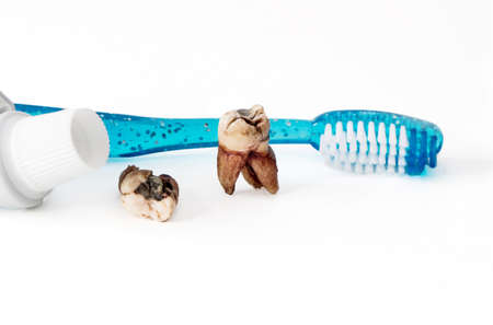 Extracted molar teeth with caries decay and filling with tooth paste and empty tube of tooth paste.