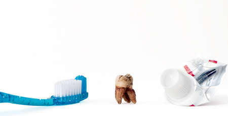 single extracted molar tooth with caries decay and filling with tooth paste and empty tube of tooth paste. White background with copy space Standard-Bild