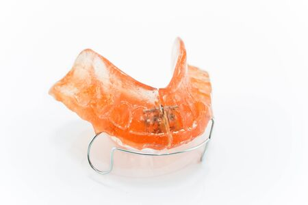 healt: Teeth braces isolated on white.
