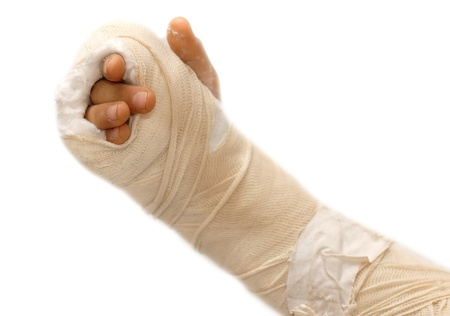 gypsum: broken arm bone in a cast and bandages over white background isolated Stock Photo