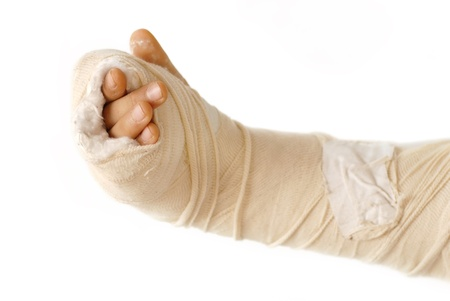 cast: broken arm bone in a cast and bandages over white background isolated Stock Photo