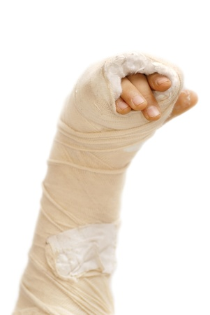 broken arm bone in a cast and bandages over white background isolated photo