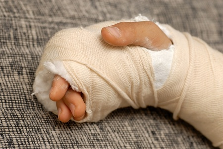 gypsum: broken arm bone in a cast and bandages over gray background