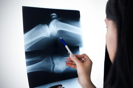 Doctor looking at the x-ray picture knee in hospital photo