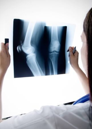 Doctor looking at the x-ray picture knee in hospital