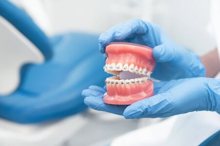 Dentist holding jaw model. Dentistry, dental care, healthy teeth, orthodontics concept