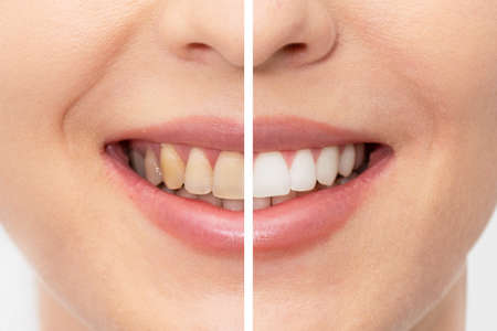 Teeth before and after whitening. Dental care concept Stock Photo