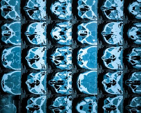 remake: Brain CT, flash remake of the film