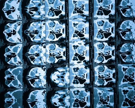 Brain CT, flash remake of the film