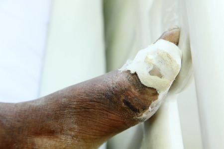 Diabetic ulcers at the foot  photo