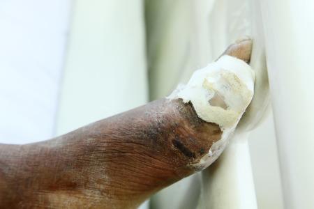ulc�re: Ulc�res diab�tiques au pied Banque d'images