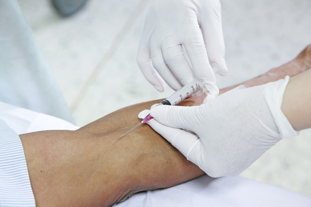 female catheter: asian nurse inject at patients arm for intravenous fluid  Stock Photo