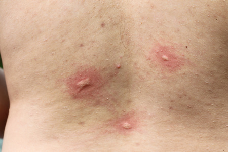 malaria:  multiple mosquito bites on body