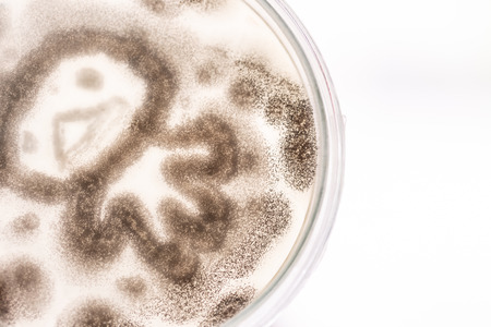Mold Beautiful, Colony of Characteristics of Fungus (Mold) in culture medium plate from laboratory microbiology.