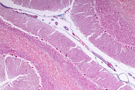 Cerebellum and Nerve human under the microscope for education in Lab.
