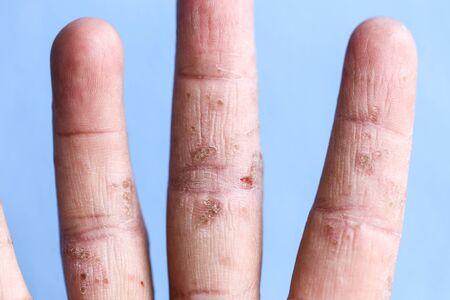 Eine körperliche atopische Dermatitis (AD), auch als atopisches Ekzem bekannt, ist eine Art von Hautentzündung (Dermatitis). Standard-Bild
