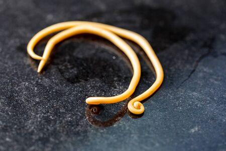 La ascariasis es una enfermedad causada por el gusano redondo Ascaris lumbricoides para la educación en los laboratorios. Foto de archivo