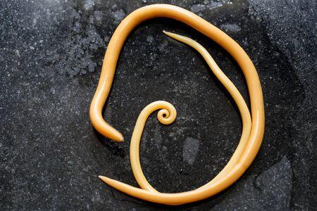 La ascariasis es una enfermedad causada por el gusano redondo Ascaris lumbricoides para la educación en los laboratorios.