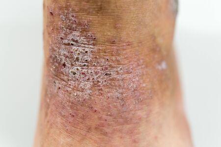 Eine körperliche atopische Dermatitis (AD), auch als atopisches Ekzem bekannt, ist eine Art von Hautentzündung (Dermatitis).