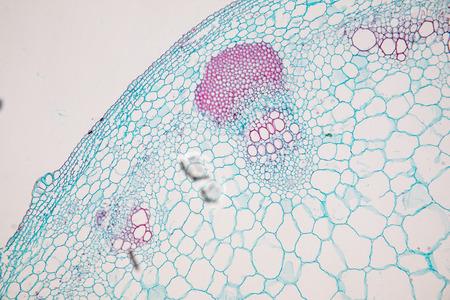 Corte transversal de dicotiledóneas, monocotiledóneas y raíz del tallo de la planta bajo el microscopio para la educación en el aula. Foto de archivo