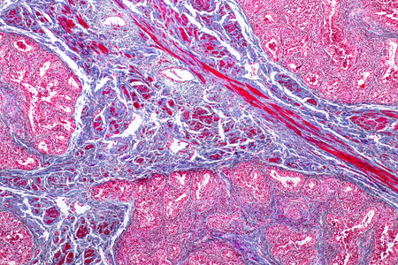 Concept of Education anatomy and physiology of mammary gland is an exocrine gland in mammals under the microscopic in laboratory.