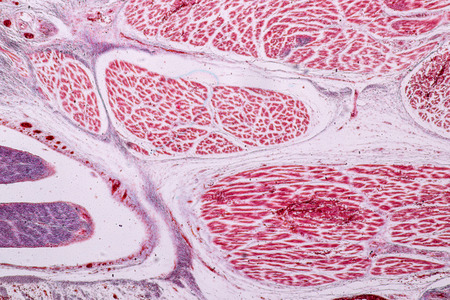 Study Histology of human, tissue bone under the microscopic in laboratory. Stock Photo