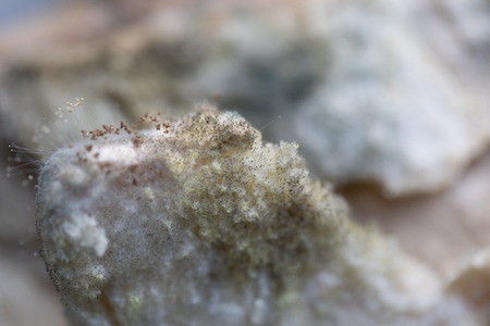 Rhizopus (bread mold) is a genus of common saprophytic fungi,Rhizopus (bread mold) under the microscope.