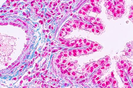 Concetto di anatomia dell'educazione e tessuto polmonare umano al microscopio, i polmoni sono organi dell'apparato respiratorio negli esseri umani.