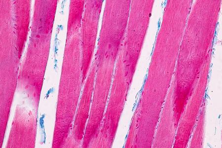 Bildung Anatomie und histologische Probe Gestreifter (Skelett-) Muskel von Säugetieren Gewebe unter dem Mikroskop. Standard-Bild