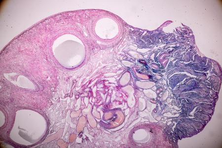 Bildung Anatomie und histologische Probe Eierstock von Kaninchen Gewebe unter dem Mikroskop. Standard-Bild
