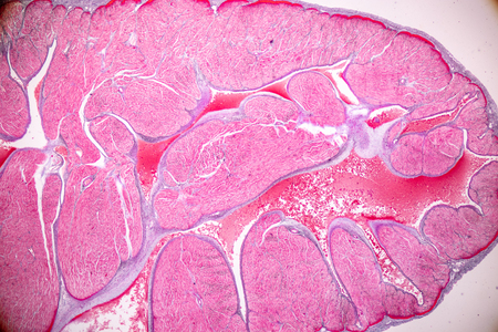 Education anatomy and Histological sample Heart muscle Tissue under the microscope.