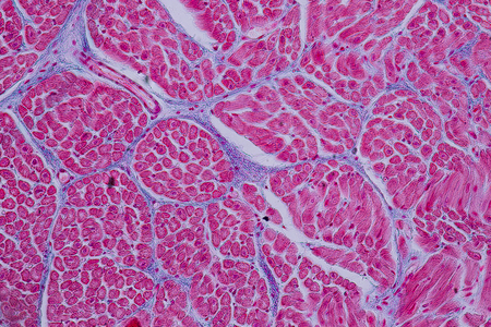 Educación anatomía y muestra histológica Músculo cardíaco Tejido bajo el microscopio.