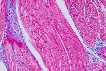 Education anatomy and Histological sample Heart muscle Tissue under the microscope. Stock Photo