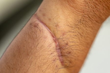 A scar is an area of fibrous tissue that replaces normal skin after an injury on skin.