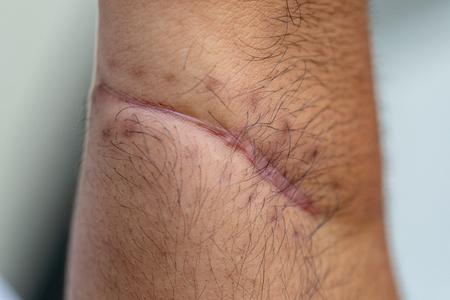 Une cicatrice est une zone de tissu fibreux qui remplace la peau normale après une blessure sur la peau.