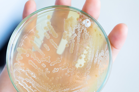 Backgrounds of Characteristics and Different shaped Colony of Bacteria and Mold growing on agar plates from Soil samples for education in Microbiology laboratory. Banque d'images