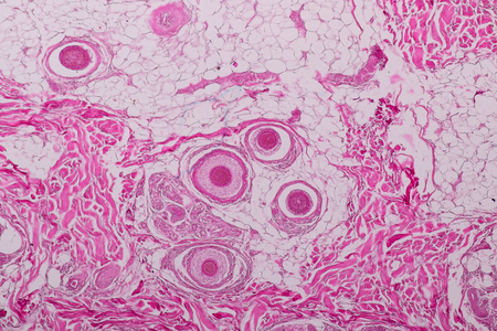 Education anatomy and physiology of Human scalp show of hair folticles under the microscopic in laboratory.