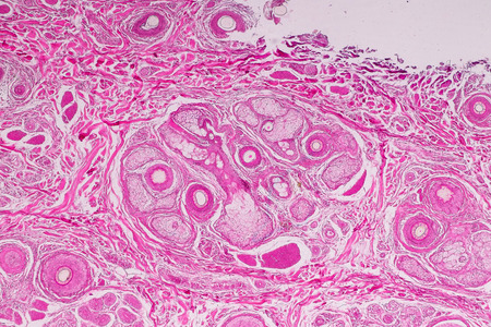 Education anatomy and physiology of Human scalp show of hair folticles under the microscopic in laboratory. Reklamní fotografie