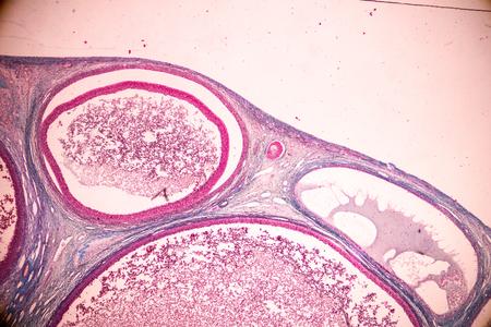 Schüler lernen Anatomie und Physiologie des Eierstocks unter dem Mikroskop im Labor.