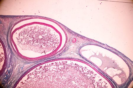 Student learning anatomy and physiology of Ovary under the microscopic in laboratory.