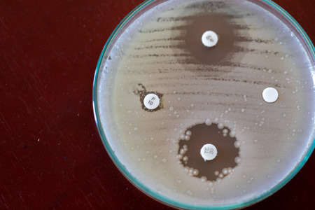Drug testing of microbiology laboratory.