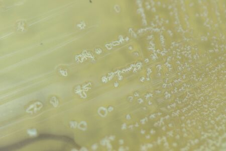 Backgrounds of Characteristics and Different shaped Colony of Bacteria and Mold growing on agar plates from Soil samples for education in Microbiology laboratory.