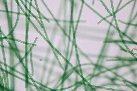 Study of Oscillatoria is a genus of filamentous cyanobacterium, oscillation in its movement under the microscope.