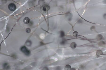 Backgrounds Colony Characteristics of Rhizopus (bread mold) is a genus of common saprophytic fungi, Rhizopus (bread mold) under the microscope.(soft focus and have GrainNoise)