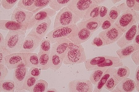 Root tip of Onion and Mitosis cell in the Root tip of Onion under a microscope.