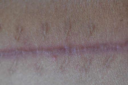 Scar on skin arm.